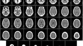 Dye to be used in initial surgery for brain tumours